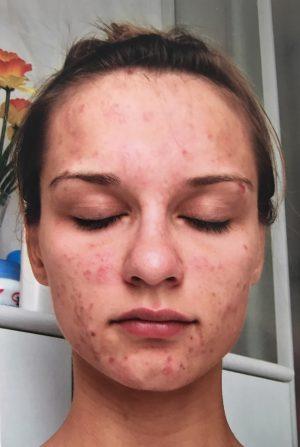 Frau mit Skinpicking