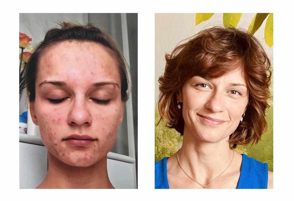 Frau mit Skinpicking links, und gesunder Haut rechts